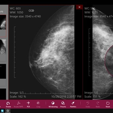 Athena DICOM Viewer Alternatives and Similar Software